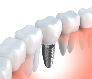 Calgary patients benefit from dental implant after tooth extraction or to replace missing teeth