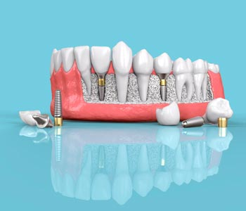 What Calgary area patients can expect before, during, and after dental implants