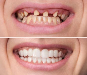Dental veneers create transformations to suit patients' unique needs in Calgary – see our before and after photos!