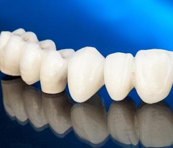 Calgary patients ask: Can I find veneers dentistry service around me?