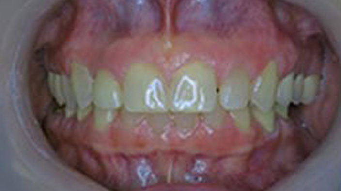 Biobloc Orthotropics - After Treatment 1