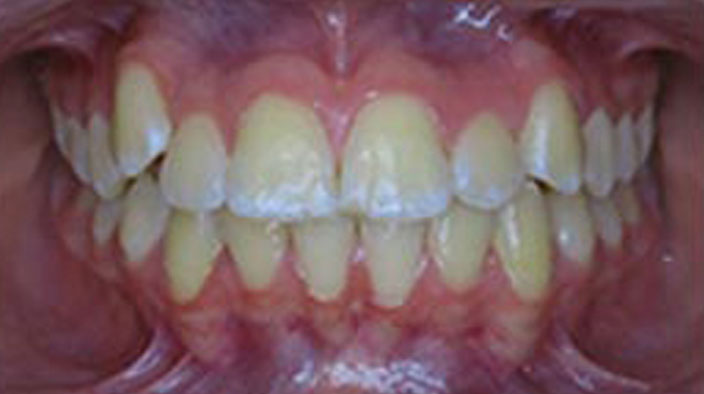 Biobloc Orthotropics - After Treatment 2
