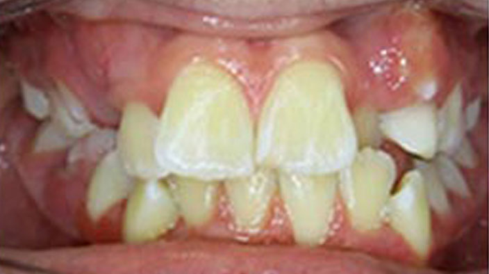 Biobloc Orthotropics - Before Treatment 2