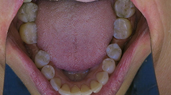 Biological Dentistry - After Treatment