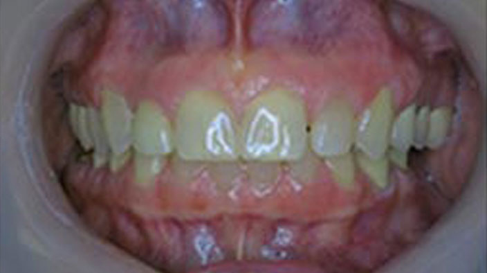 Dental Implants - After Treatment