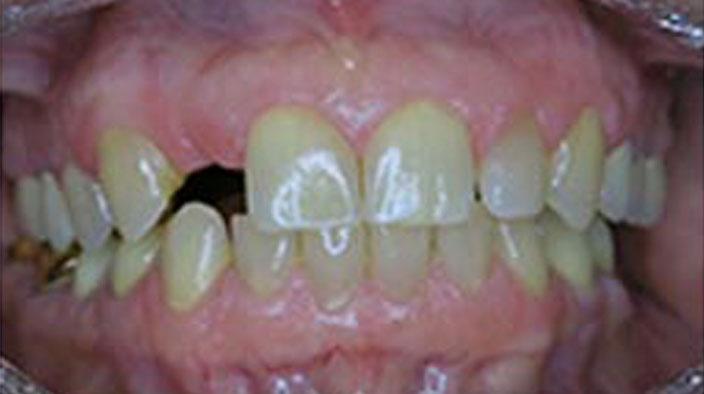 Dental Implants - Before Treatment