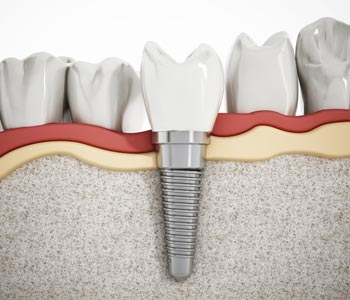 Best Dental Implants Treatment provider in Calgary