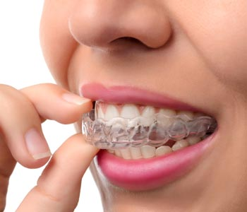 Best Invisalign Treatment provider in Calgary