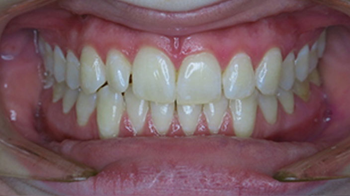 Invisalign - Before Treatment 1