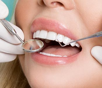 Best veneers Treatment provider in Calgary
